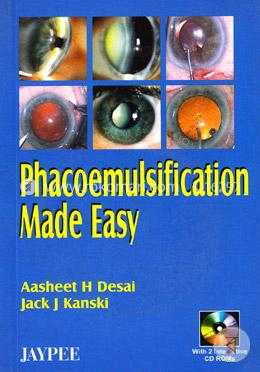 Phacoemulsification Made Easy